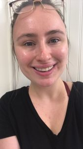 Picture of a smiling girl with skin problems
